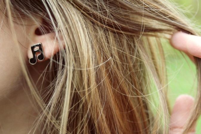 Hyperacusis ervaringen geluid